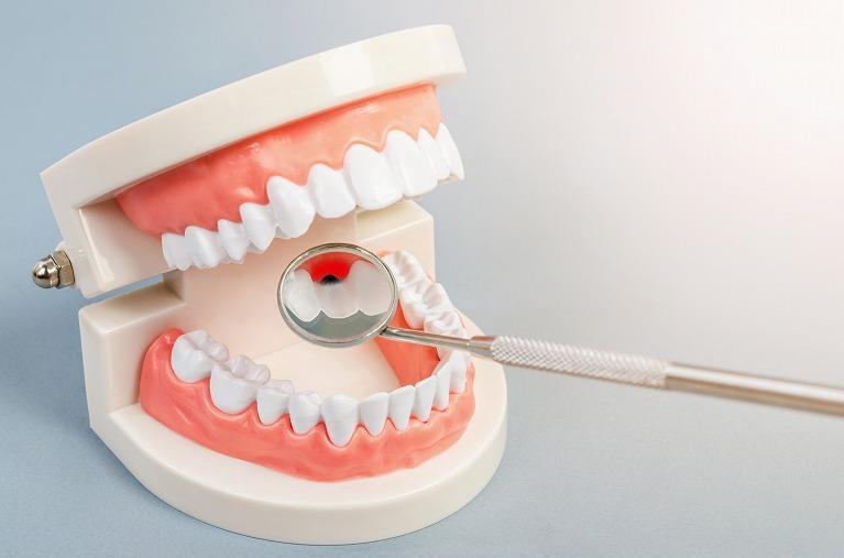 セラミックの歯は虫歯になりにくい