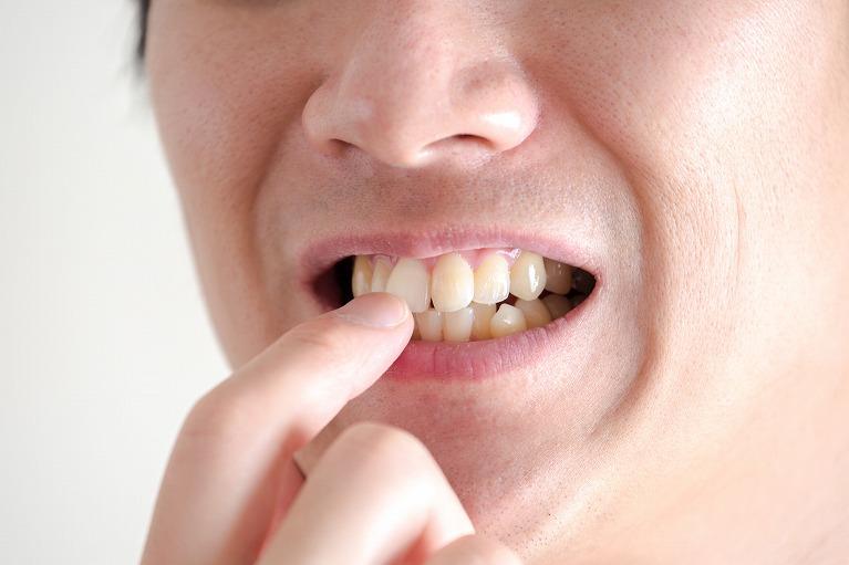 前歯の歯並びが気になる・矯正したい