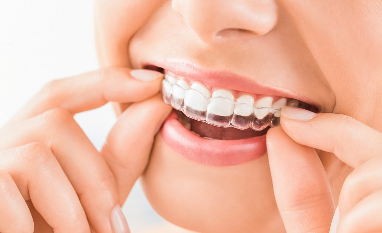 矯正 キレイ ライン キレイライン歯列矯正の記録