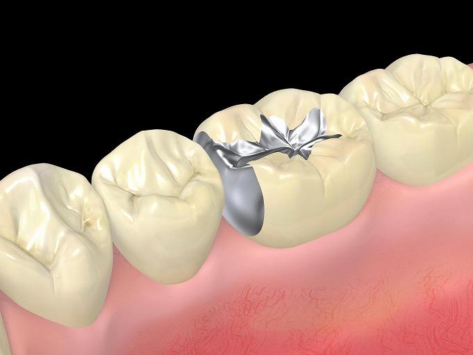 保険の歯は虫歯になりやすい?