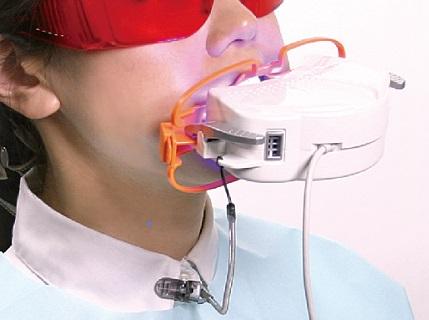 短期間で歯を白くしたい方!