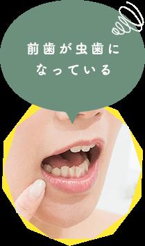 前歯が虫歯に なっている