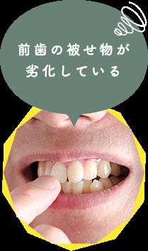前歯の被せ物が 劣化している