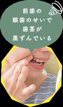 前歯の 銀歯のせいで 歯茎が 黒ずんでいる