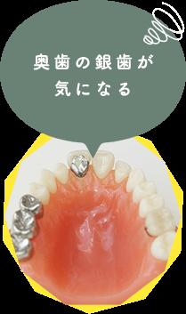 奥歯の銀歯が 気になる