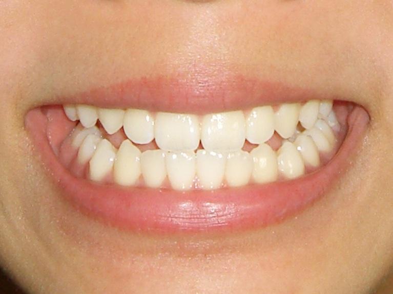 少ない負担で気になる部分の歯並びが整えられます
