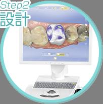 step2 設計
